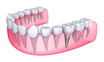Dental Implant Smile